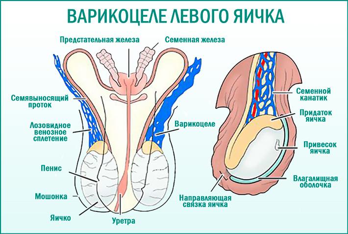 Варикоцеле левого яичка: симптомы и способы лечения