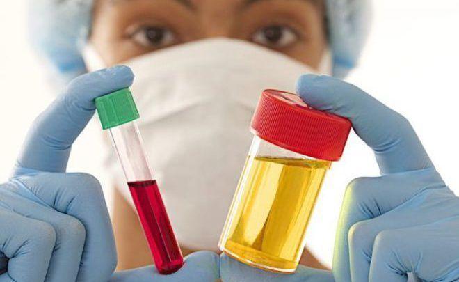 Общего анализа крови и мочи
