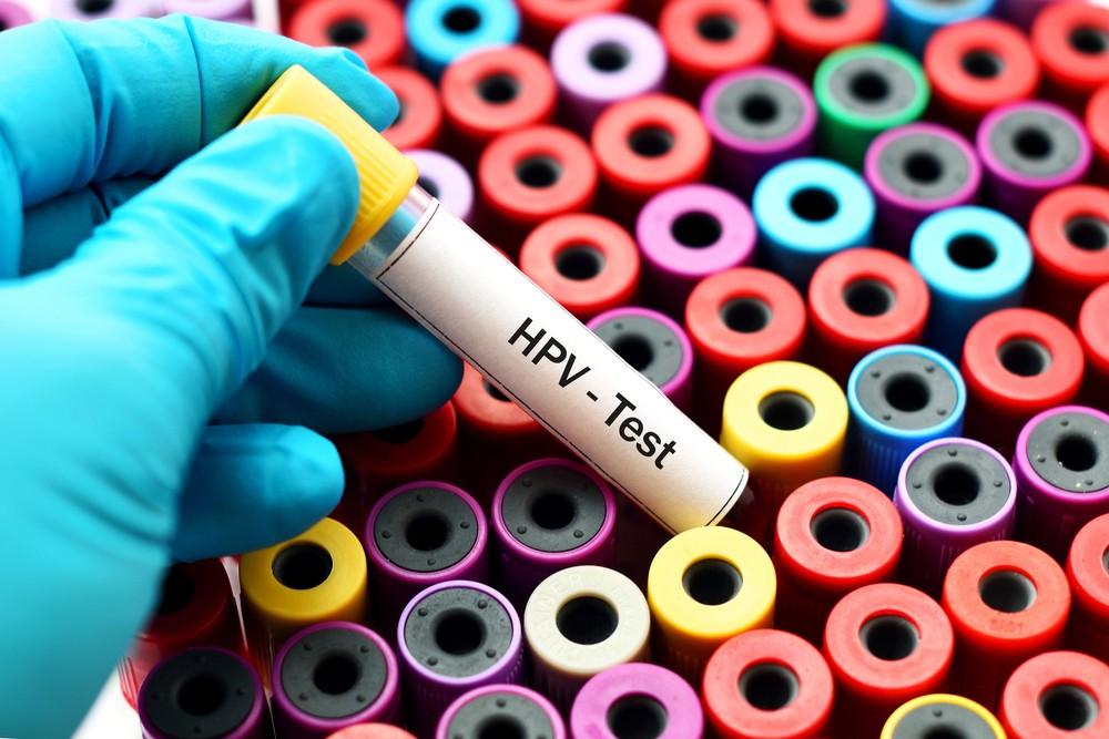 Как мужчинам сдавать кровь на ВПЧ