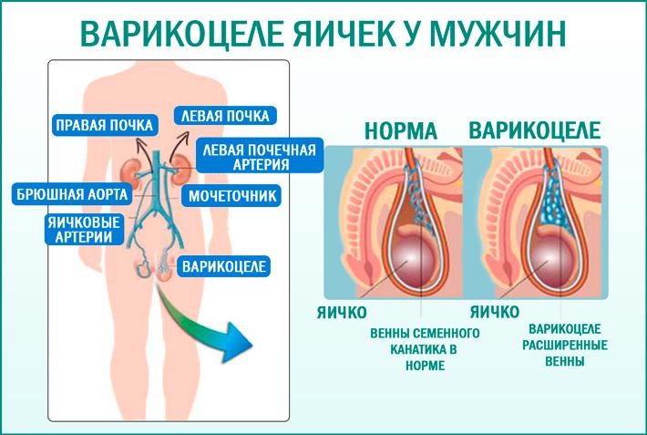 Варикоцеле: расширение вен яичка у мужчин