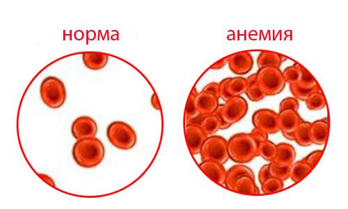 анемия и гипотония