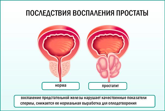 Хронический простатит и детородная функция лечить простатита тыквенными семечками