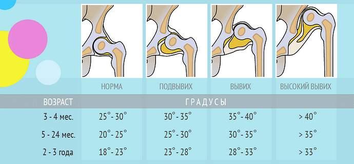 Что такое дисплазия тазобедренных суставов у грудничка, можно ли полностью вылечить патологию