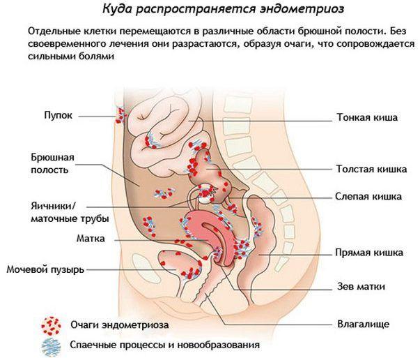 Развитие эндометриоза