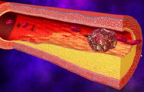 устранение тромбоэмболии