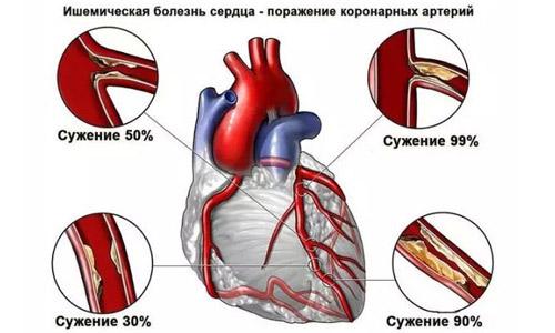 при ишемической болезни сердца