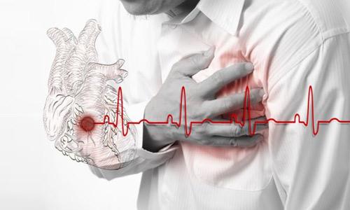 инфаркты