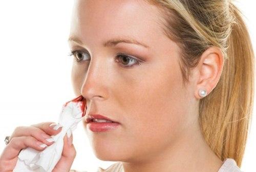 причина носового кровотечения