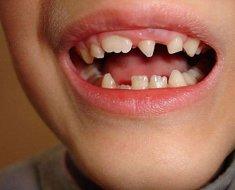 Сколько у детей должно быть молочных зубов, сроки прорезывания и выпадения