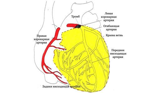 инфаркт задней и передней стенки