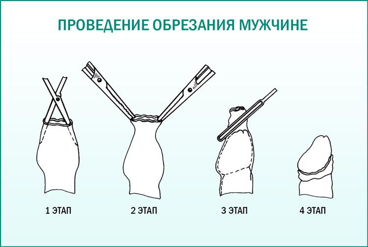 Операция обрезания