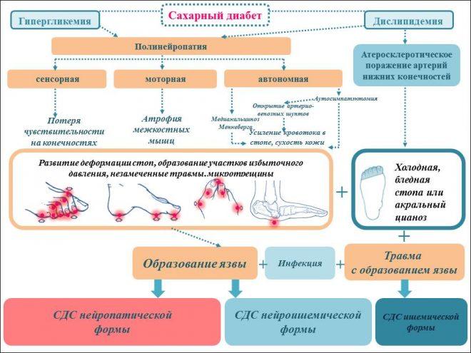 Патогенез синдрома диабетической стопы