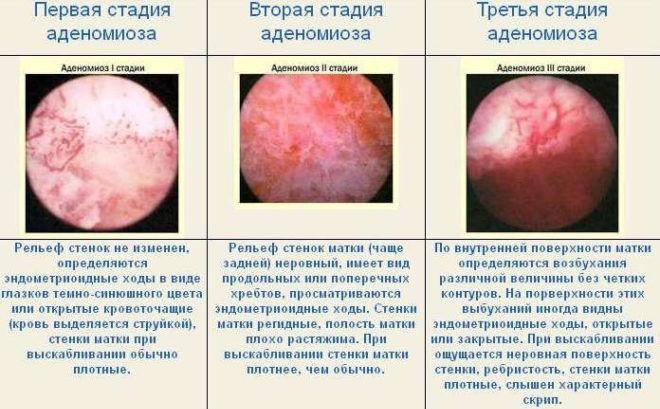 Степени аденомиоза