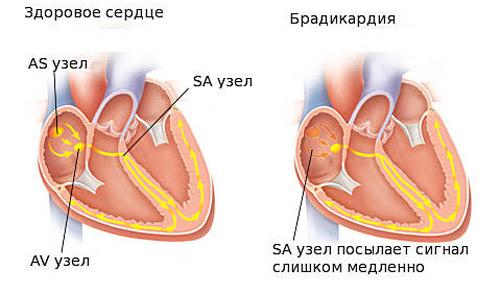 детей брадикардия сердца