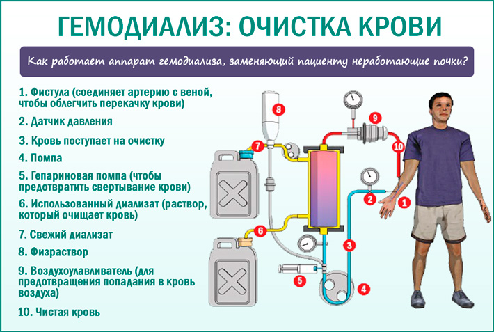 Гемодиализ, фильтрация крови