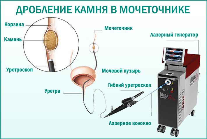 Операции по удалению камней в почках