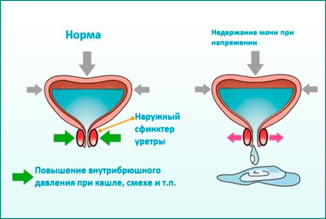Нормальное и патологическое состояние наполненного мочевого пузыря
