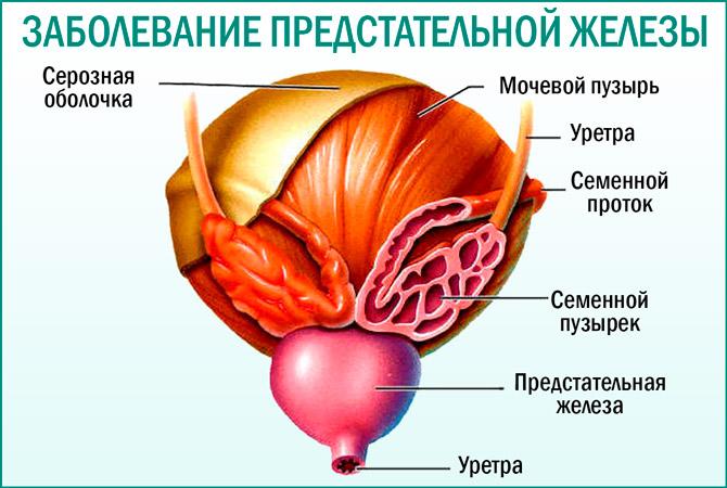 Заболевания простаты: симптомы