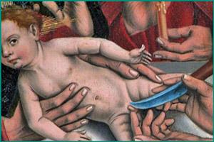 Ритуал обрезания