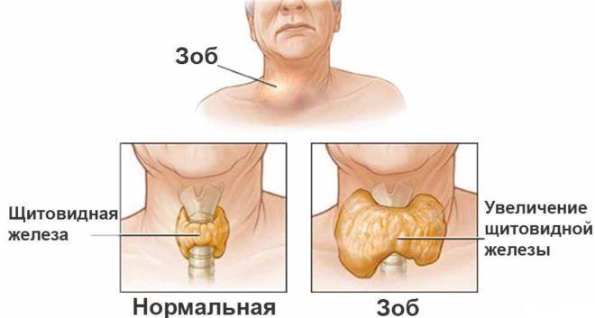 Гиперплазия щитовидки