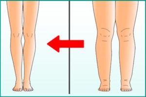 Отеки ног при гепаторенальном синдроме
