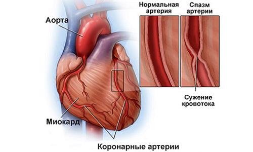 сужение коронарных артерий