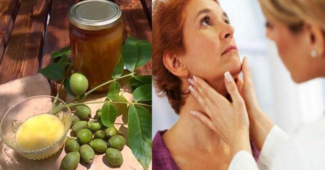 Лечение щитовидки народными средствами