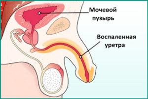 Простатит и уретрит (уретропростатит)
