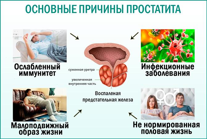 Приступ простатита чем лечить лечение простатита ташкент