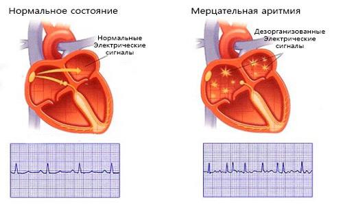 аритмия осложнение инфаркта