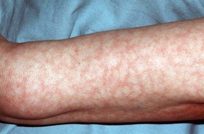 Мраморный оттенок кожи;