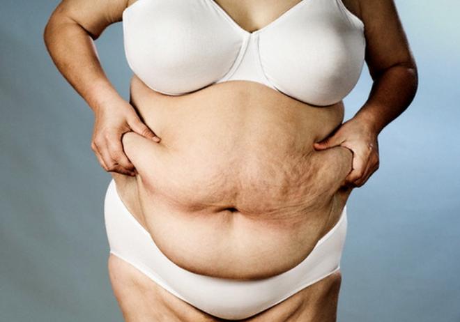 Людям страдающим ожирением противопоказано лечение гормональными препаратами