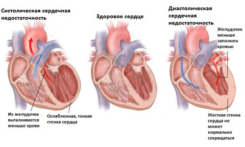 сердечная недостаточность и давление