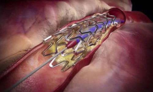 Инфаркт и стентирование