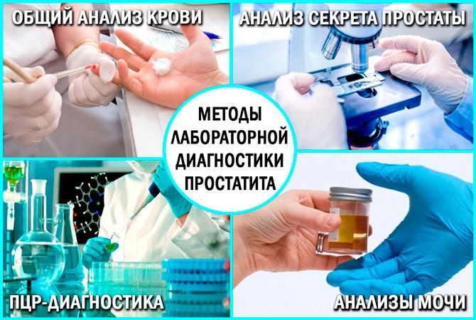 Методы диагностики простатита у мужчины