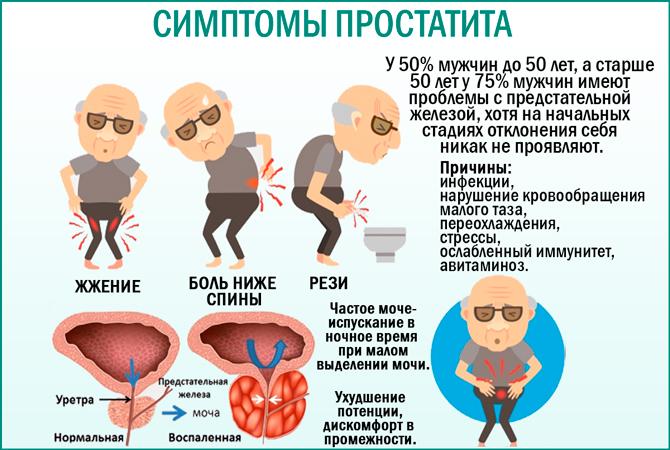 Простатит: симптомы
