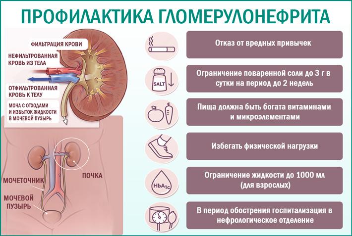Гломерулонефрит: профилактика