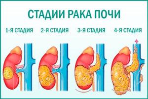 Злокачественные новообразования почечных лоханок