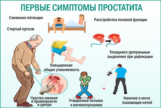 Cимптомы простатита у мужчины