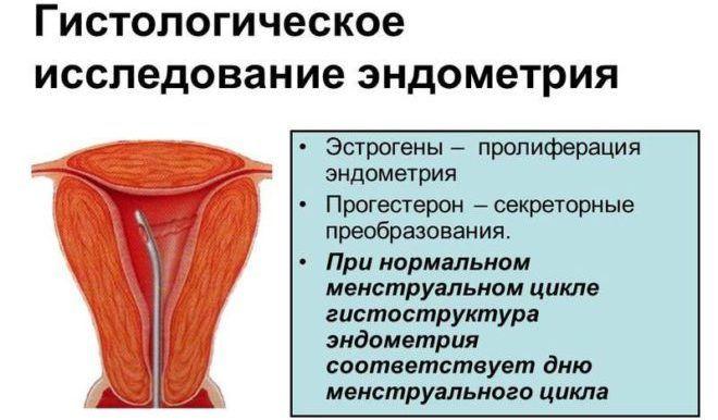 Гистологическое исследование эндометрия