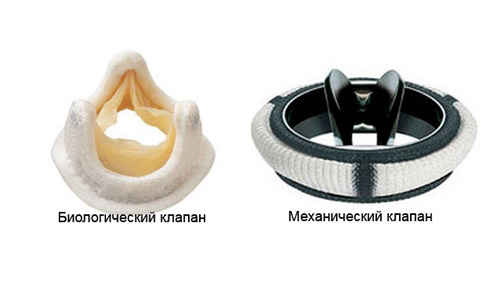 типы протезов сердечных клапанов