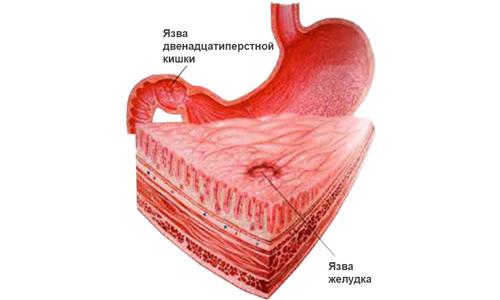 Язва желудка и жжение в области сердца