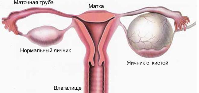 Опухоль в яичниках
