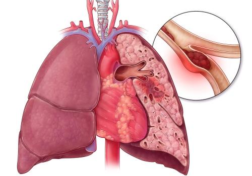 тромбоэмболия при легочной гипертензии