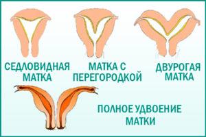 Аплазия матки и влагалища