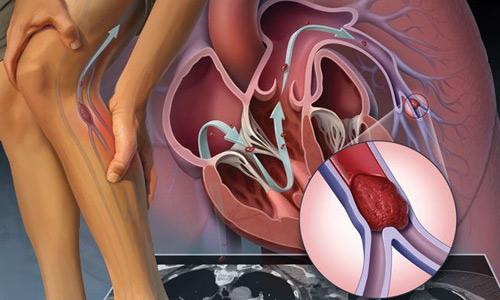 развитие тромбов