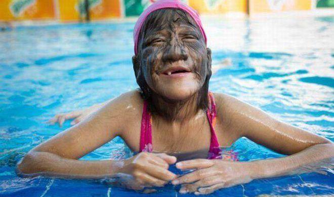 Гипертрихоз на лице у ребенка