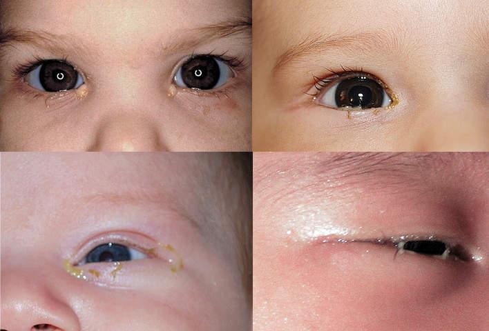 Что делать, если гноятся глаза у новорожденного и как бороться с непроходимостью слезного канала