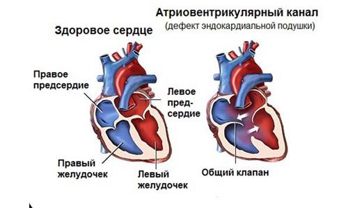 патологические шумы в сердце