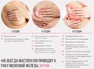 Как развивается патологический процесс мастопатии